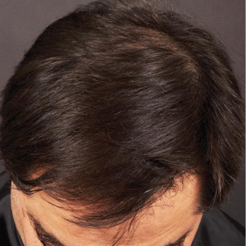Welcome Hair 2 nachher